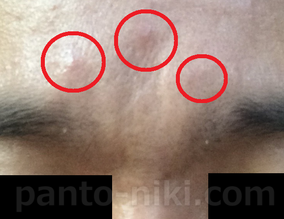 パントテン酸 乳酸菌の体験20日目 ニキビも皮脂も変わらず